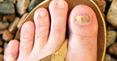 Most Effective Natural Remedies for Nail Fungus